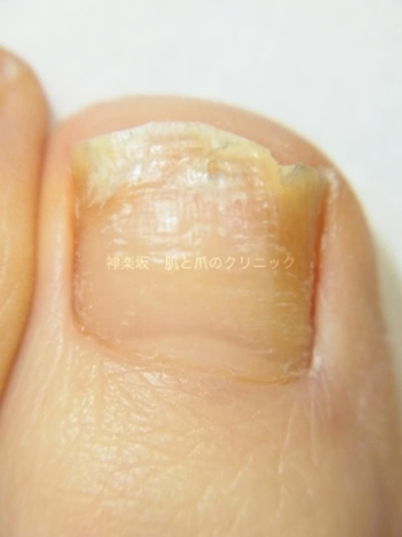 爪白癬undefined外用治療中