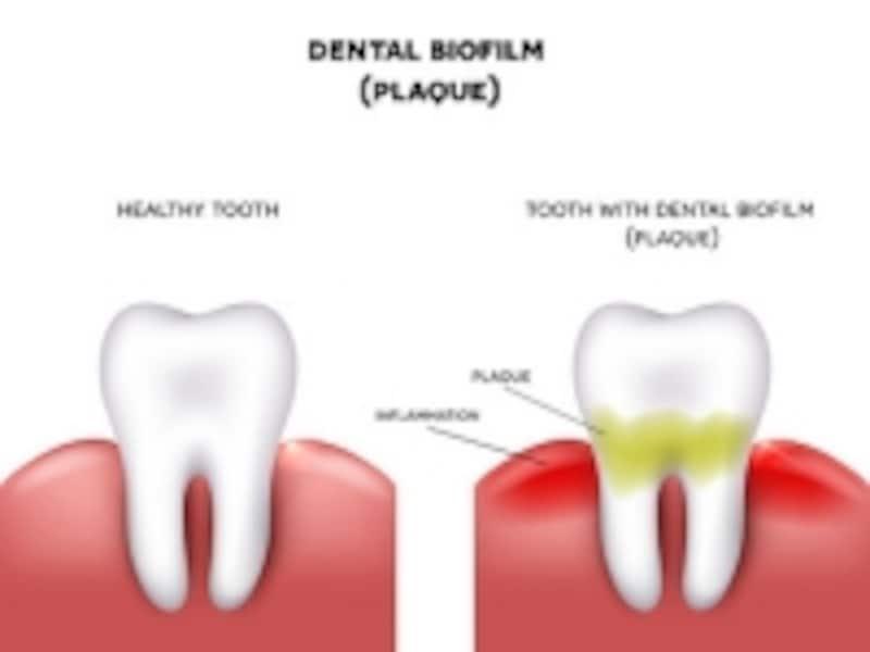 歯ぐきの炎症undefinedプラークが原因