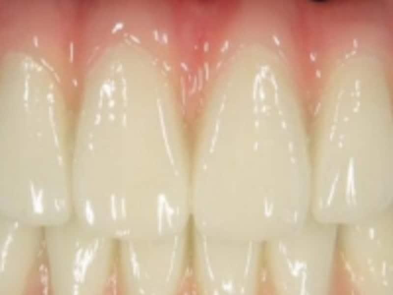 この健康的な歯と歯肉も実は・・・