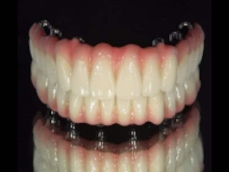 歯肉が一体となった補綴物