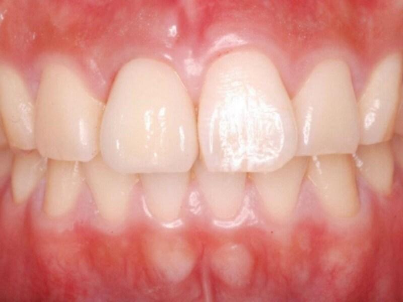 手術したその日のうちに人工歯を装着できる