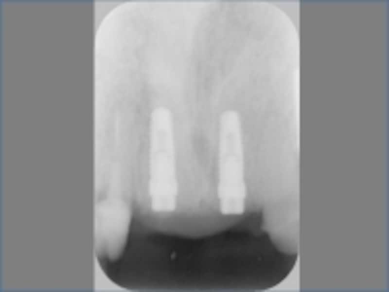 前歯の抜歯即時埋入