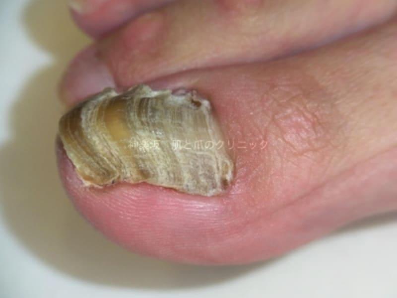 多数の横筋や爪の混濁肥厚がある