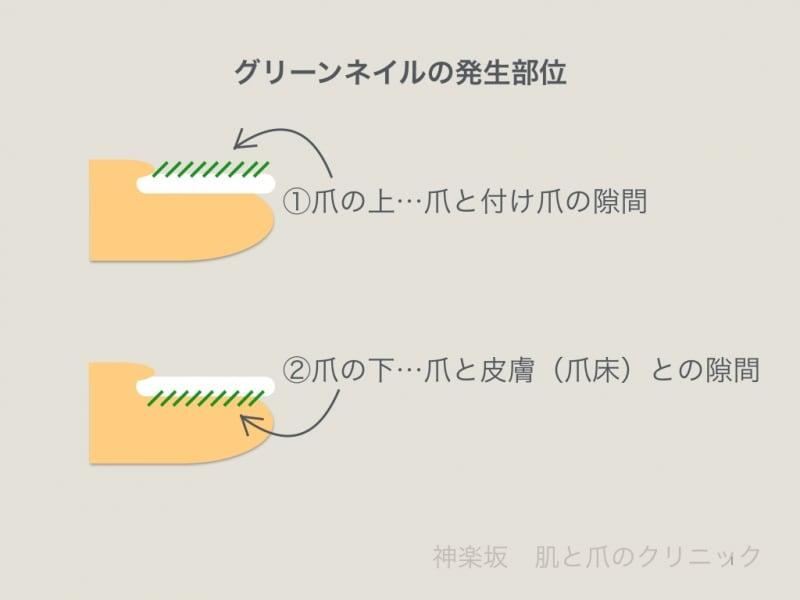 症例写真も】グリーンネイルの原因・治療・症状 [皮膚・爪・髪の