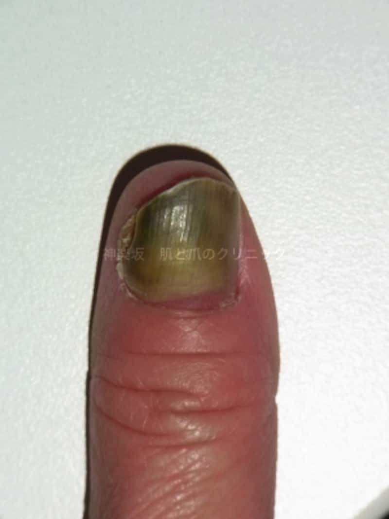 広範囲の爪甲剥離に伴う爪甲下感染