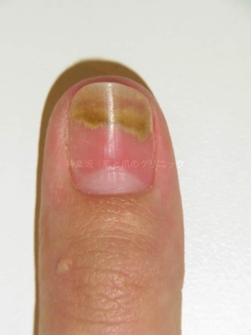 爪甲剥離に伴うグリーンネイル(爪甲下)