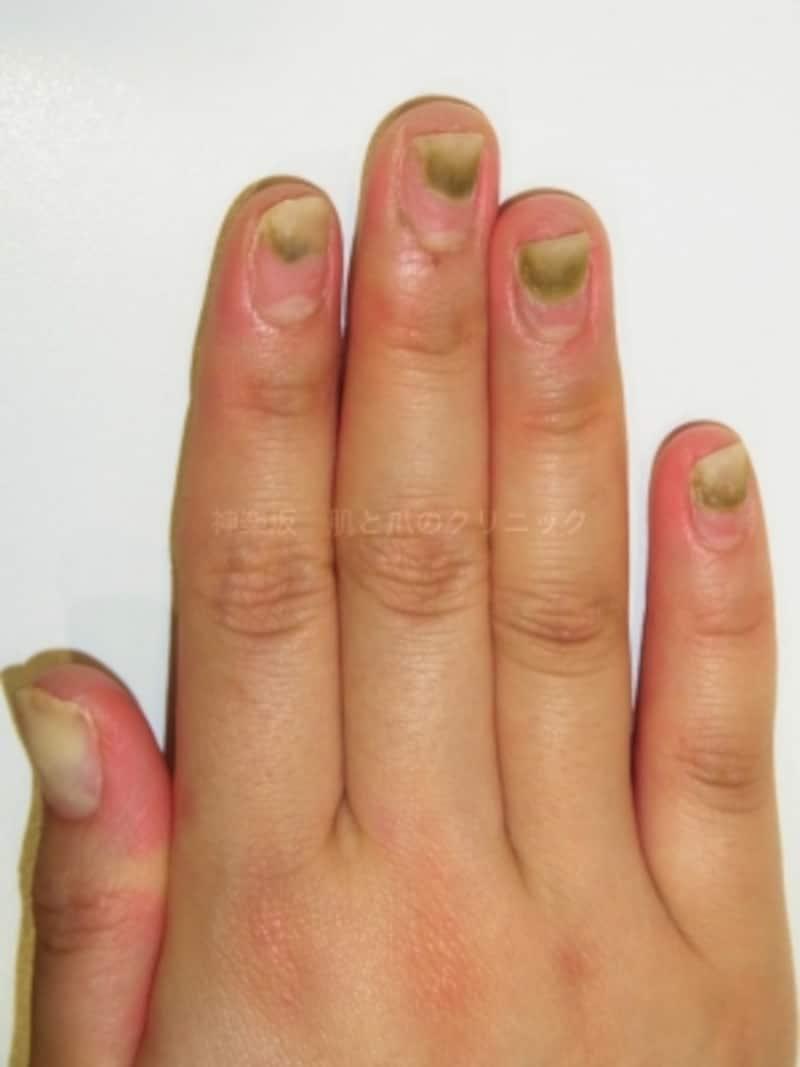全指におよぶグリーンネイル(爪甲下)