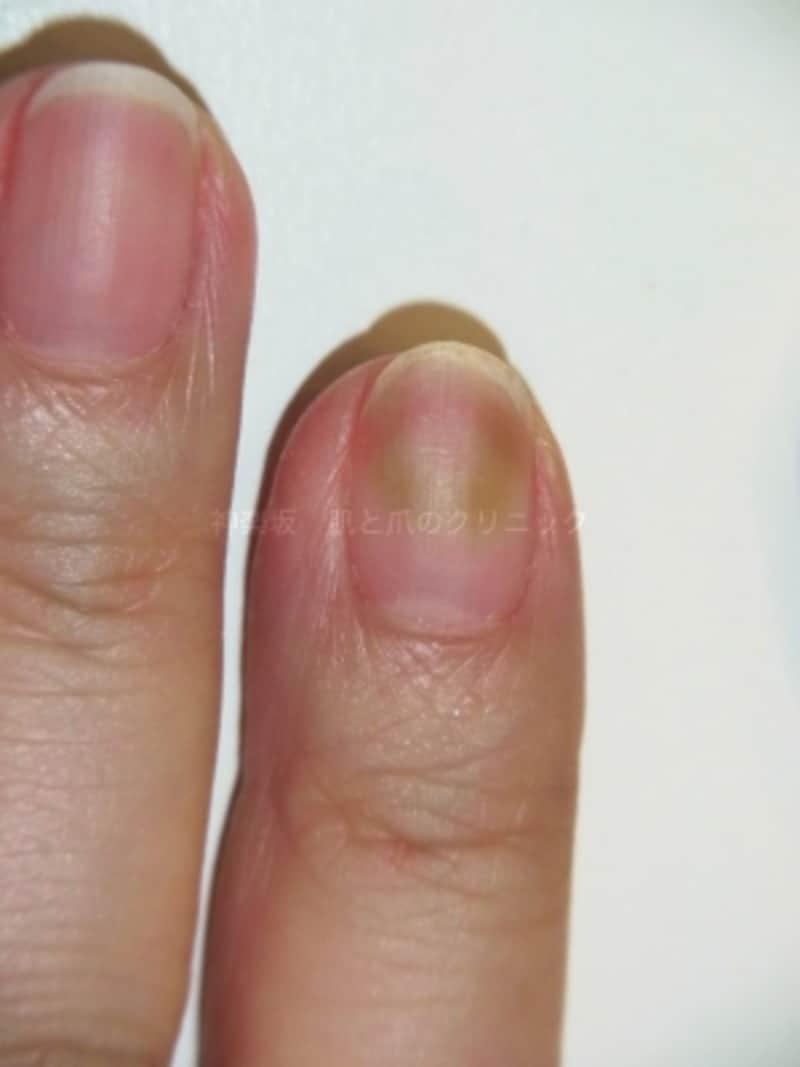 自爪とジェルネイルの隙間の感染