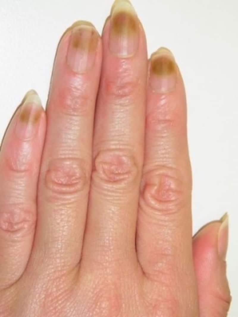 自爪とジェルネイルの隙間の感染(4指)