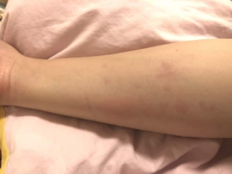 蕁麻疹の症例画像・写真