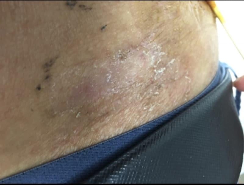 大人の湿疹の症例画像・写真