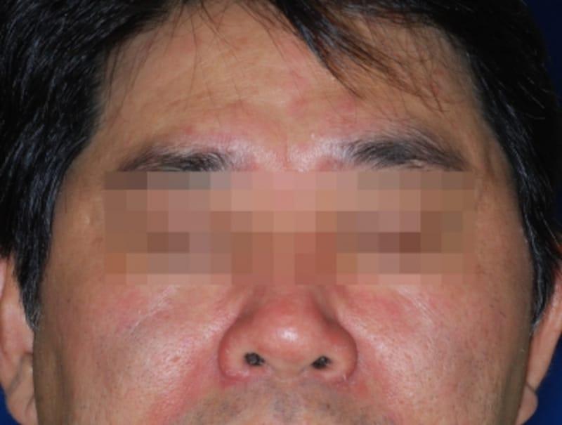 脂漏性皮膚炎の症例画像・写真・成人