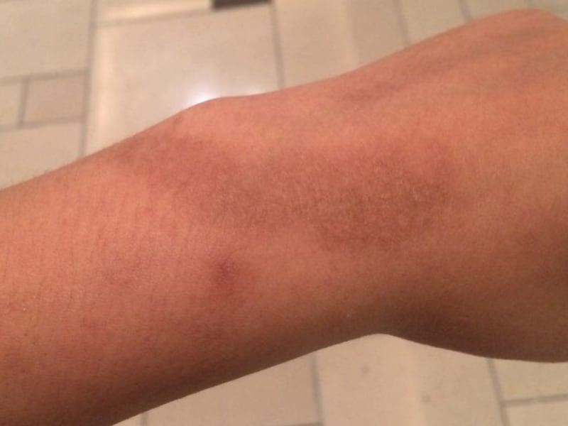 蚊に刺された跡 消えない