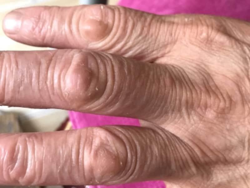 軽い手湿疹の症例写真