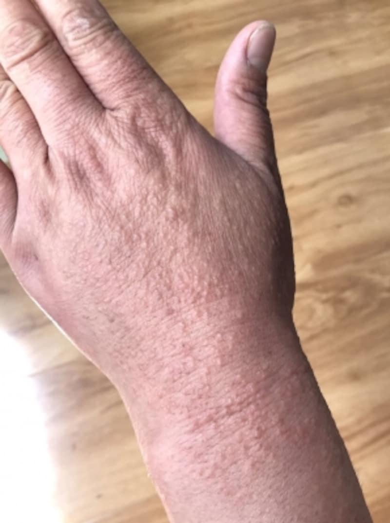 アトピー性皮膚炎と手湿疹