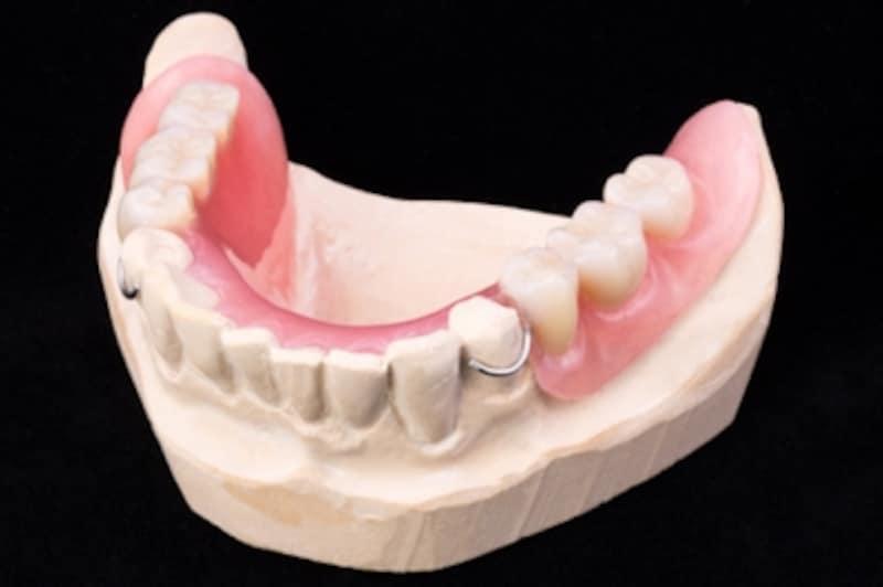 部分入れ歯のクラスプ