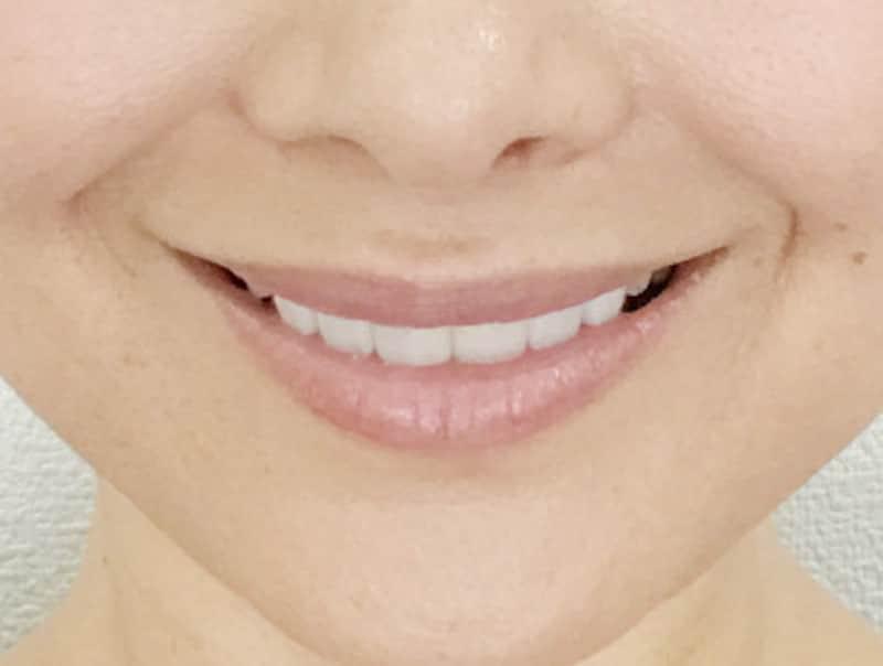 上の歯を8本見せて笑う