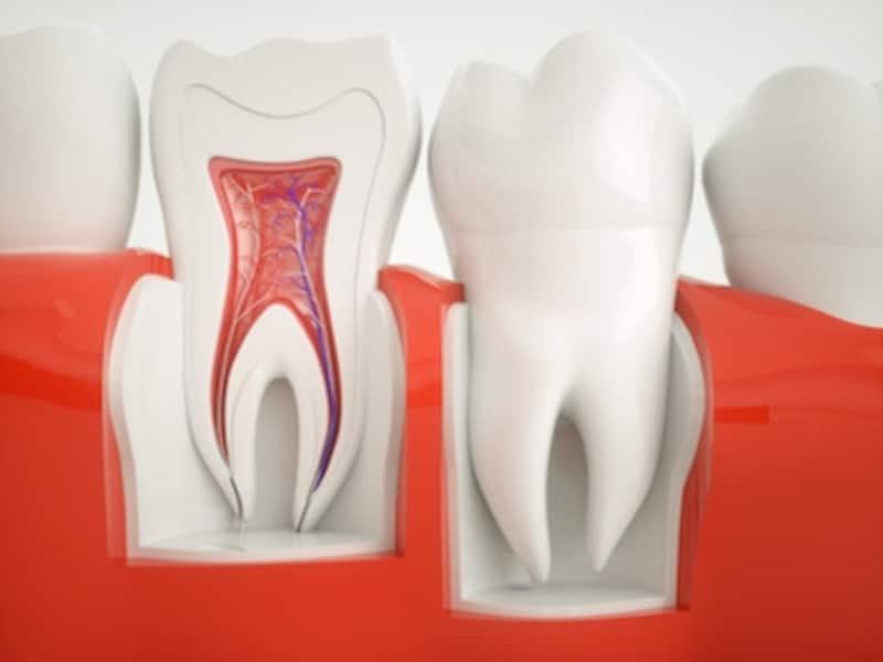 ズキズキ する が 歯
