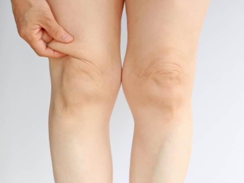 膝上がたるんで2cm以上つまめる人は、チャレンジしてみましょう。