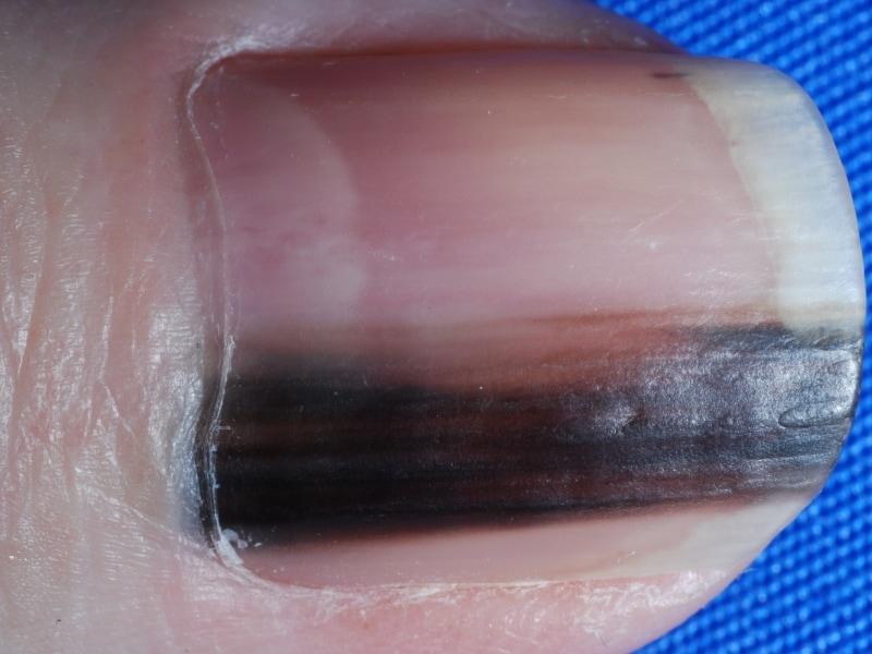 爪 黒い の 足 端っこ
