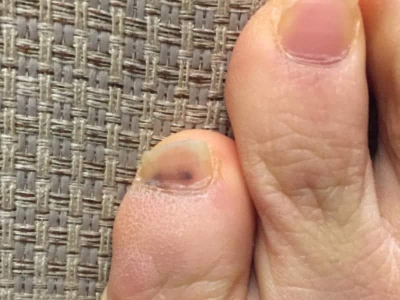 爪下出血の症例画像・写真