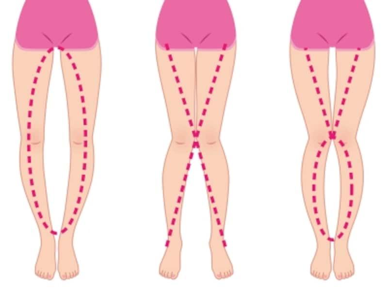 脚のトラブルと歩き方は関係しています