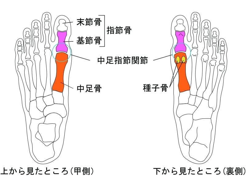 甲 出っ張り の 痛み 骨 足