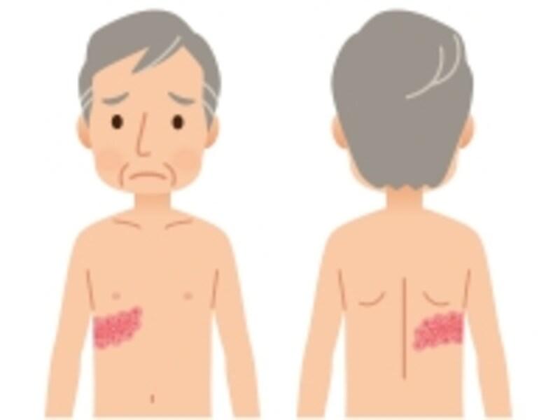 皮膚に水ぶくれや赤い発疹が帯状にあらわれます