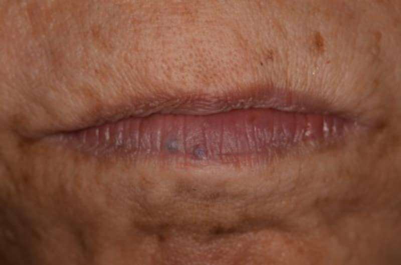 唇のできもの・静脈湖の症例画像