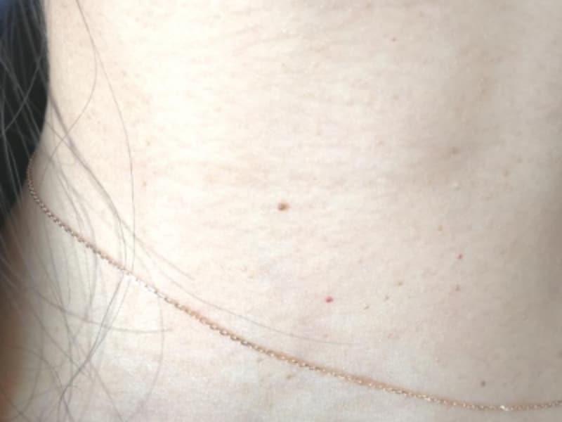 首イボの取り方・皮膚科での治療法・除去法
