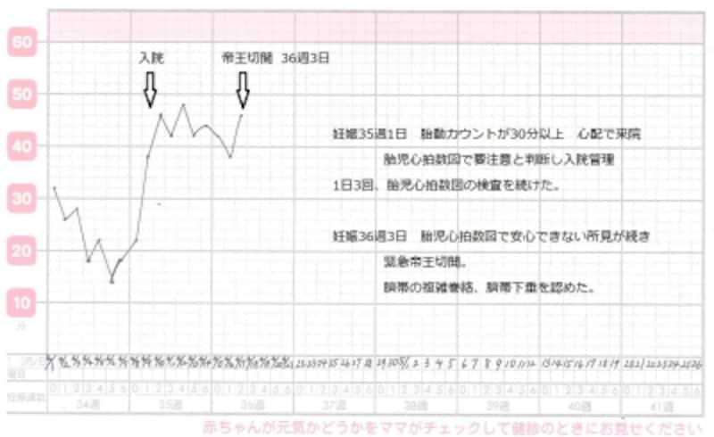 異常胎動カウントのグラフ・表(実例)