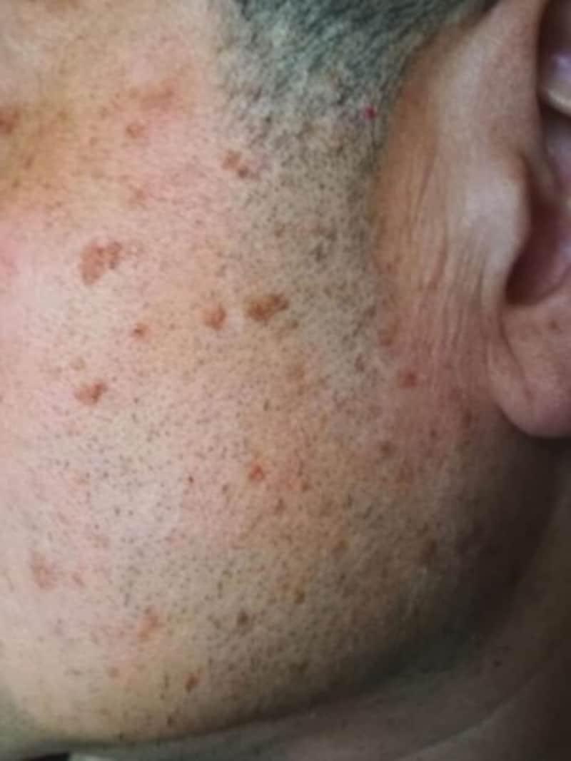 多発する比較的大型の脂漏性角化症・老人性イボ