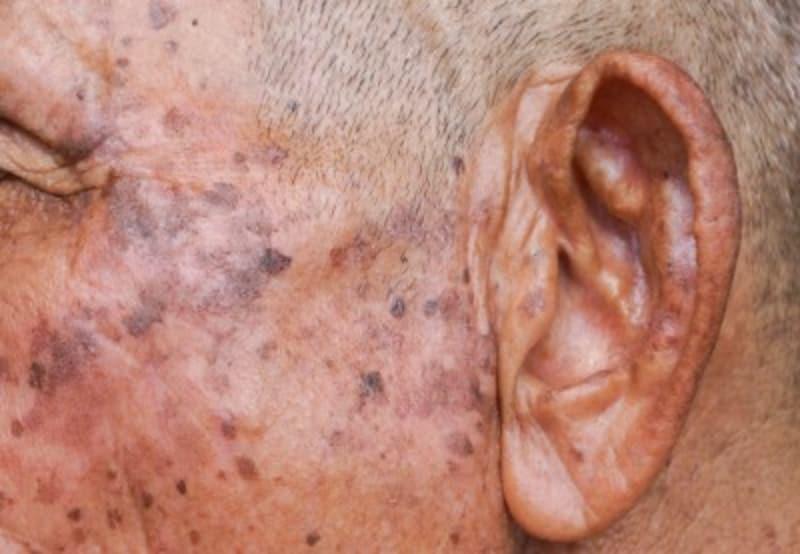 老人性イボ・脂漏性角化症