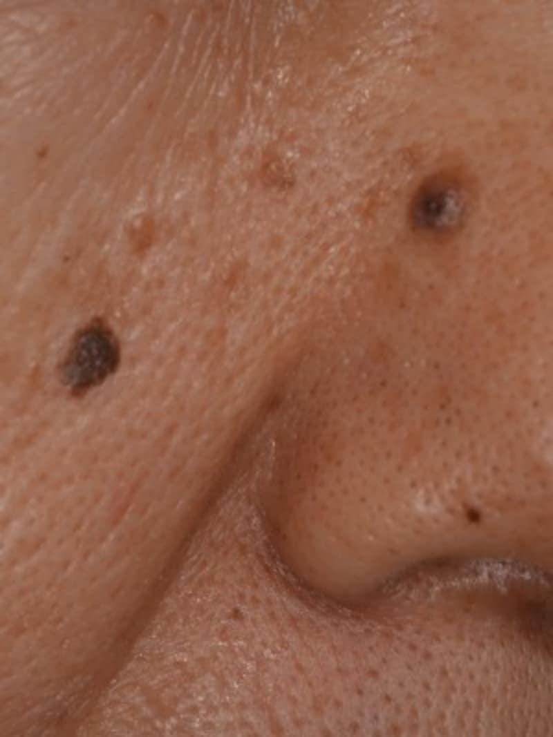 顔にできた脂漏性角化症・老人性イボ