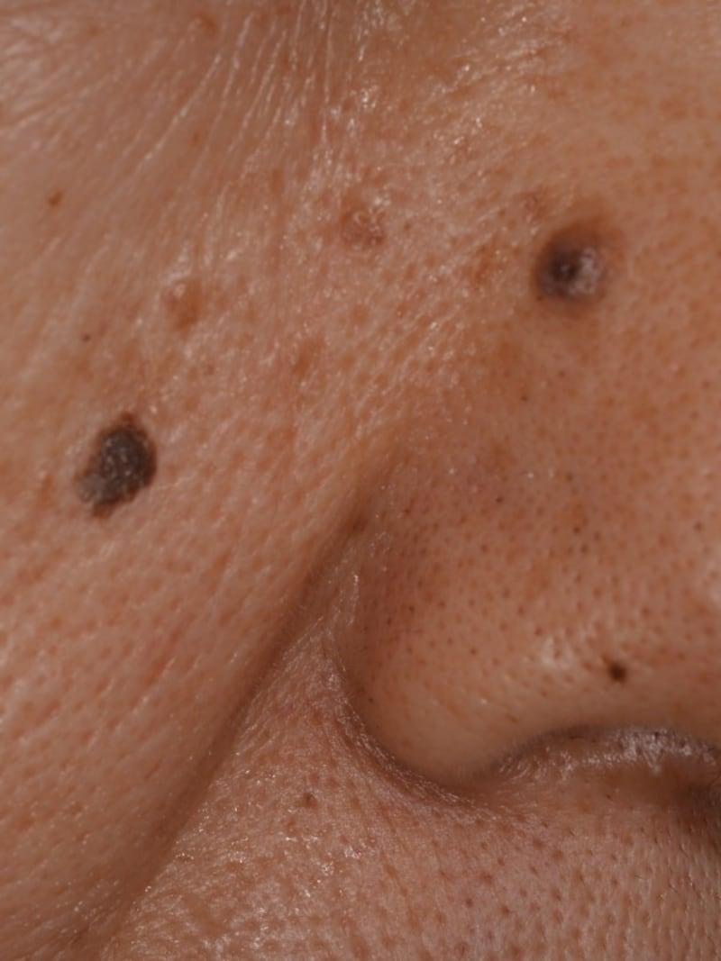顔 イボ 液体 窒素