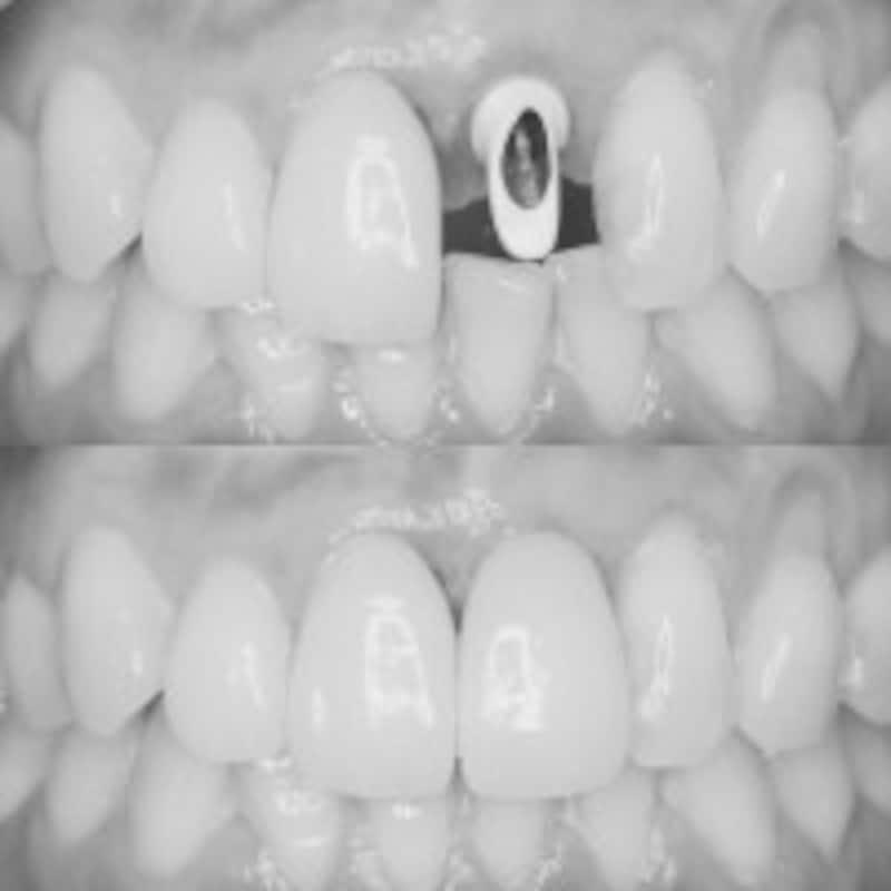 歯科インプラントにセラミッククラウンを被せた直後