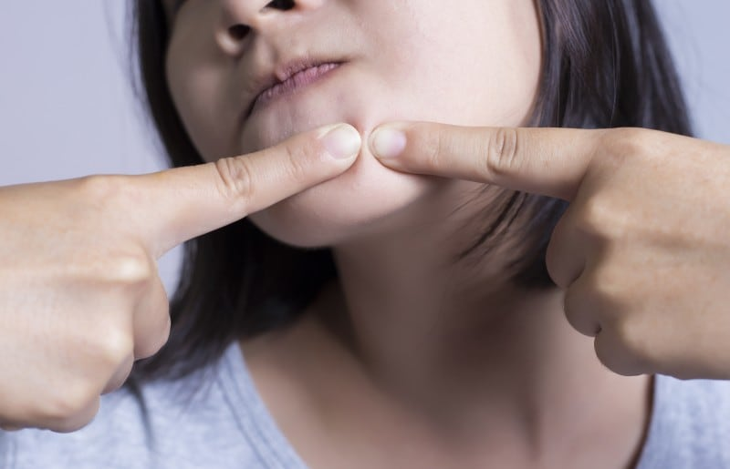 の の 顎 ニキビ 原因 下