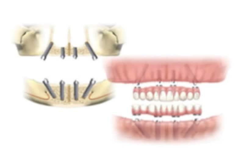 オールオン4なら治療した日に仮歯の装着が可能