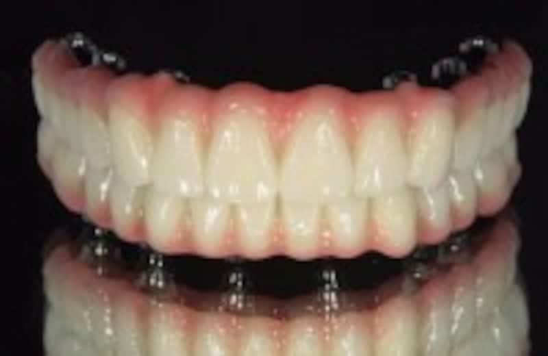 上部構造は人工歯肉まで再現することも