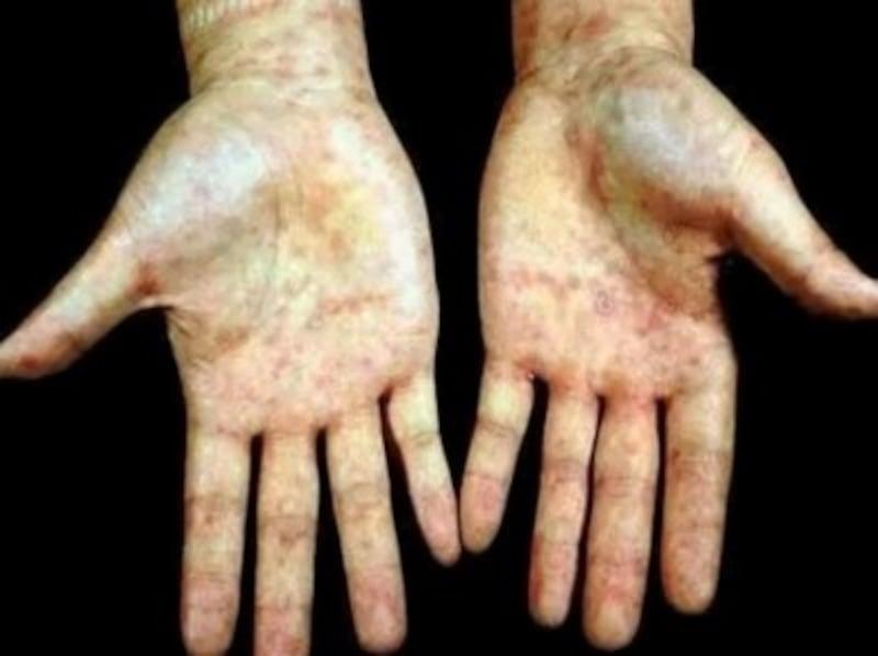 梅毒の症例画像・写真