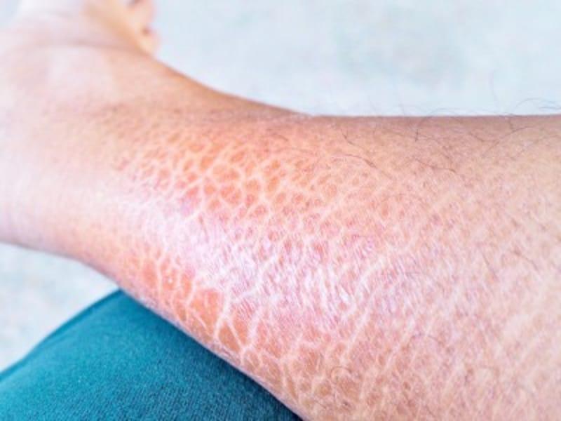 尋常性魚鱗癬の症例画像・写真