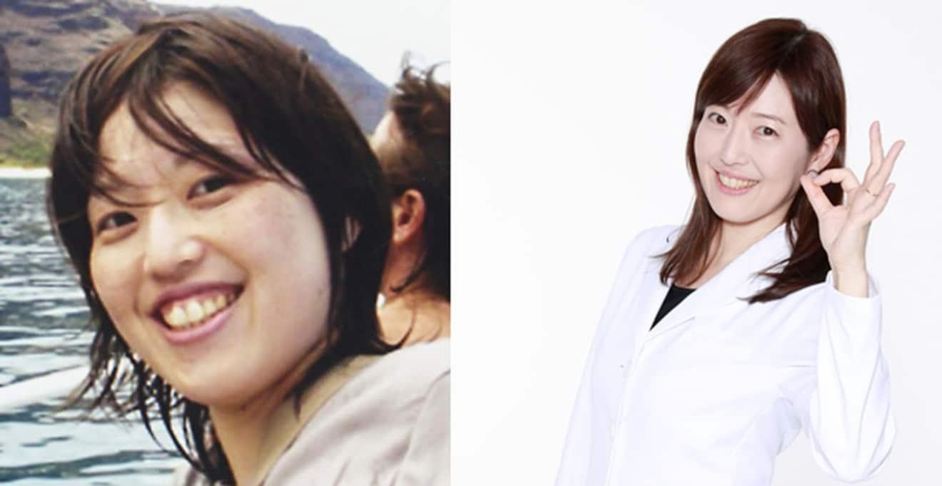糖質制限やハードな運動は逆効果!?「元おデブ女医」が教えるR40ダイエット
