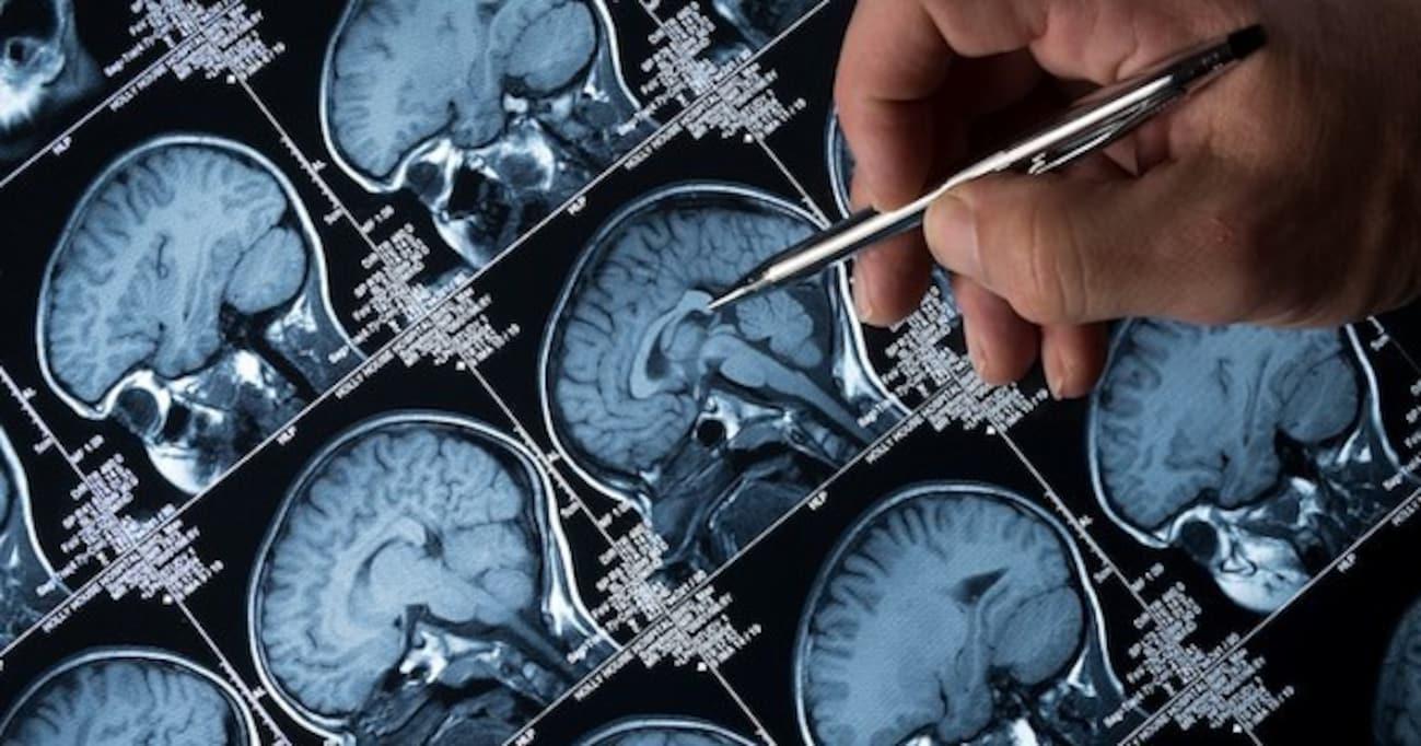 心肺停止後、5分は意識がある!? 最新の脳神経学で分かった「死」
