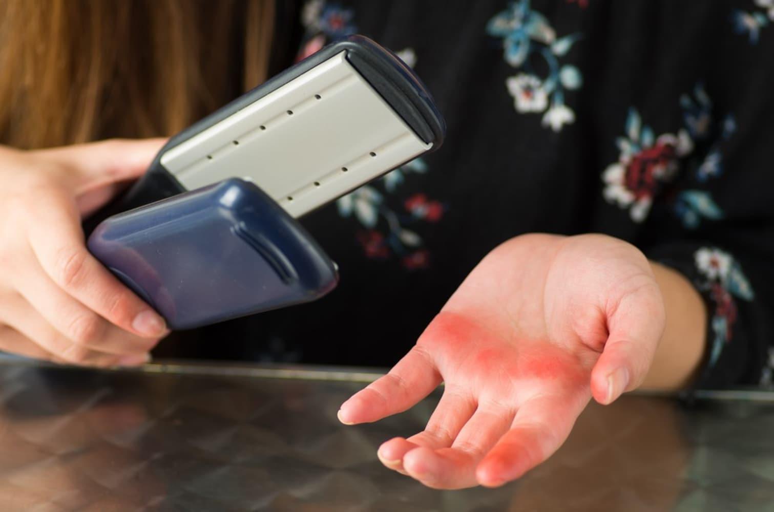 手や首のやけどに注意!