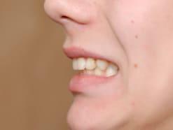 歯並びが悪くなる原因・対処法…加齢で変わる歯並び