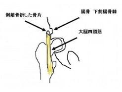 剥離骨折の症状・診断・治療法【形成外科医が解説】