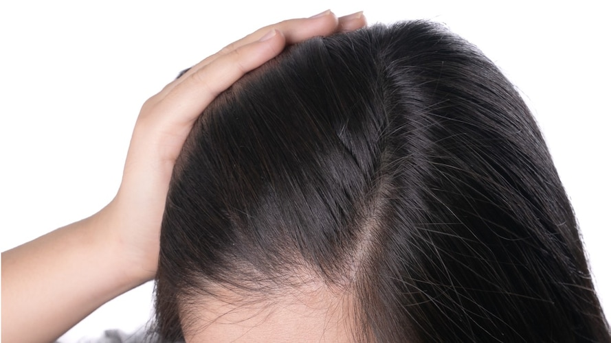 髪質・頭皮のケア