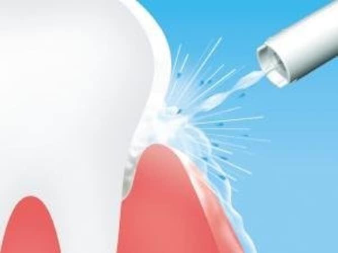 水流方式 高圧で汚れを洗い流すなら「ジェット水流方式」、歯茎ケアなら「バブル水流方式」