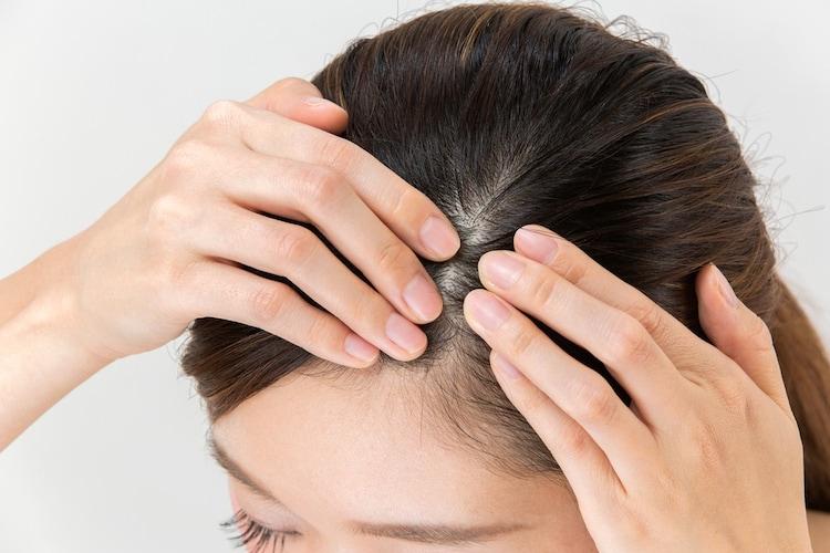 ・ノンシリコンは頭皮のふけや、かゆみで悩んでいる方におすすめ