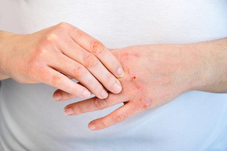 【あかぎれ・ひび割れ】ビタミン系のハンドクリーム